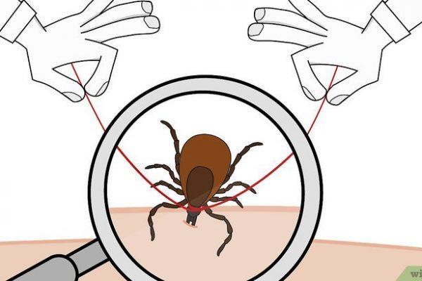 Comment Enlever Une Tique Minuscule