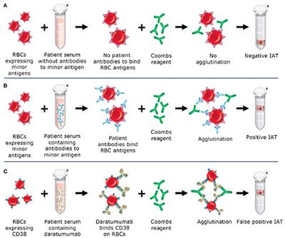 Anti M Antibody Blood Transfusion