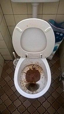 Diarrhée Liquide Comme De L'eau